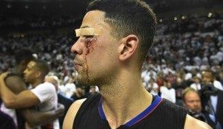 Los Blazers eliminan a los Clippers y dejan la cara de Austin Rivers como un mapa (Vídeos)