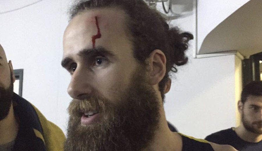 Luigi Datome, agredido tras el derbi con el Galatasaray: «Es triste que pasen estas cosas»